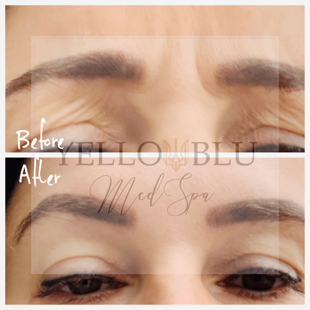 Before/After Gallery-14