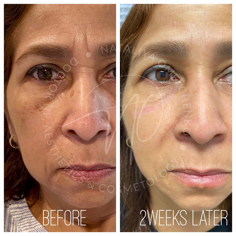 Combo of Botox/ IPL/ Fillers/ Facial Threads