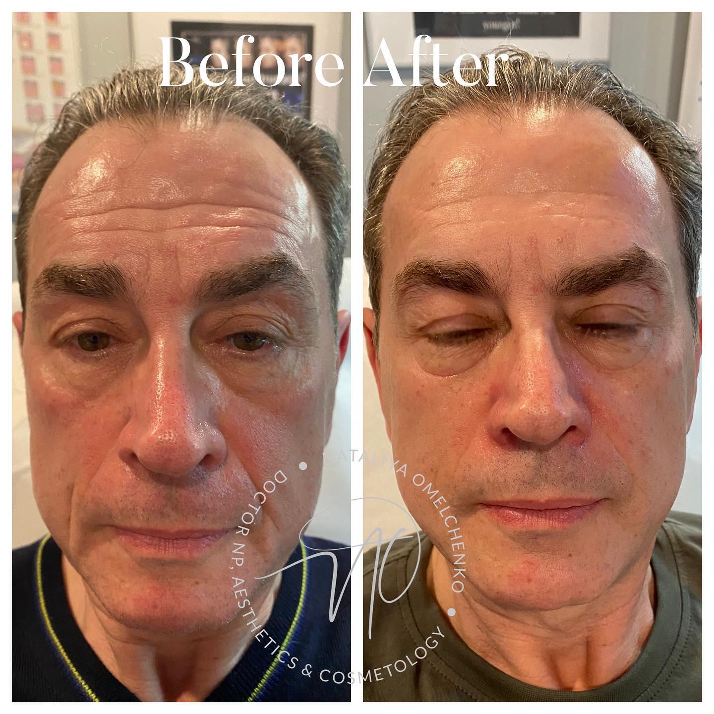 Botox/Filler/IPL