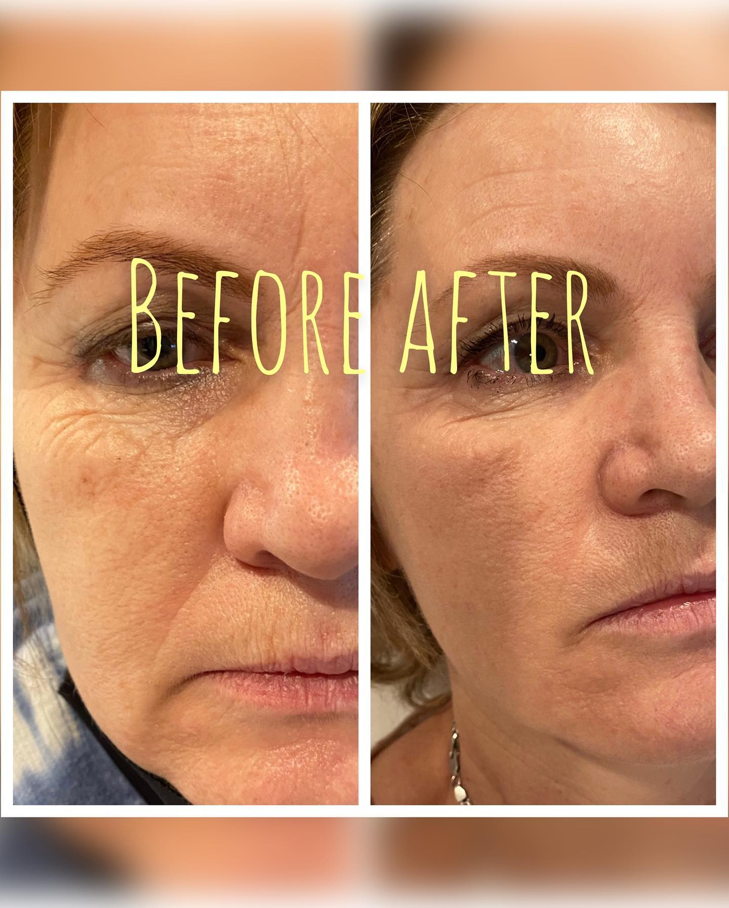 Botox/Undereye Filler/ Laser skin resurfacing